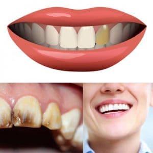 Pourquoi les dents s'assombrissent-elles et que faire?